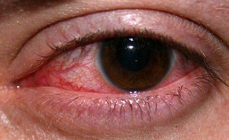 Кератит – это опасное воспаление роговицы глаза