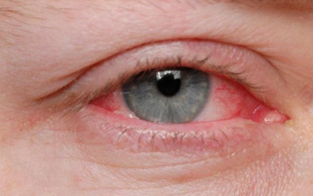 Лекролин могут вызвать раздражение глаз