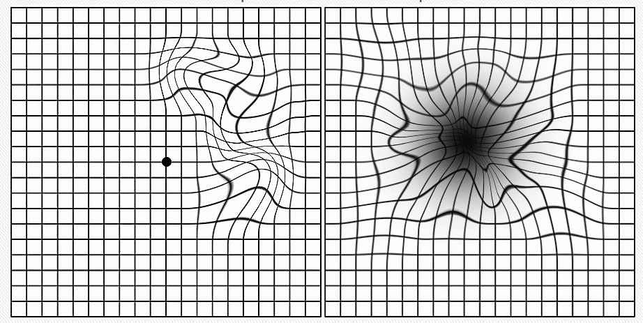 картинки тесты на глаукому арубе тоже самым
