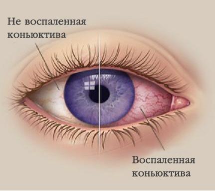 Один из побочных эффектов Атропина - это гиперемия конъюнктивы
