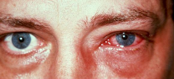 Один из побочных эффектов Тобрадекса - воспаление конъюнктивы