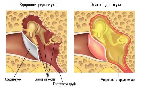 Отит средного уха