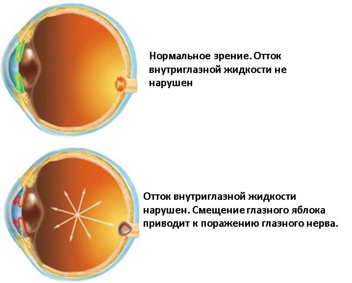 Применение Тропикамида противопоказано при катаракте