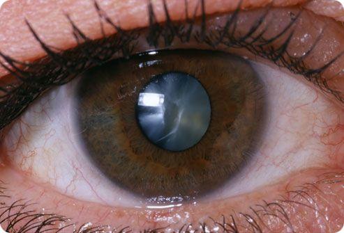 Тауфон применяют для комплексного лечения катаракты