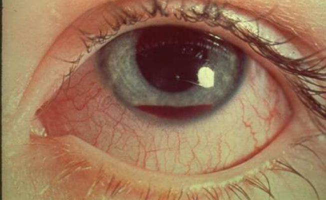 Травма глазного яблока может стать причиной боли