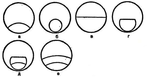 Формы бифокальных и трифокальных линз