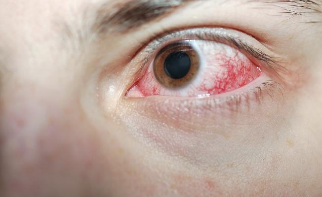 Химический ожог - наиболее опасный вид травм глаза