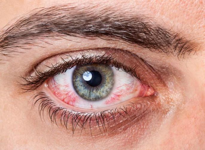 Капли для глаз от аллергии — обзор средств