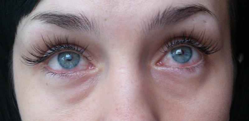 Аллергия на наращенные ресницы