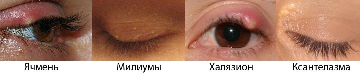 Белая точка на верхнем веке глаза - фото