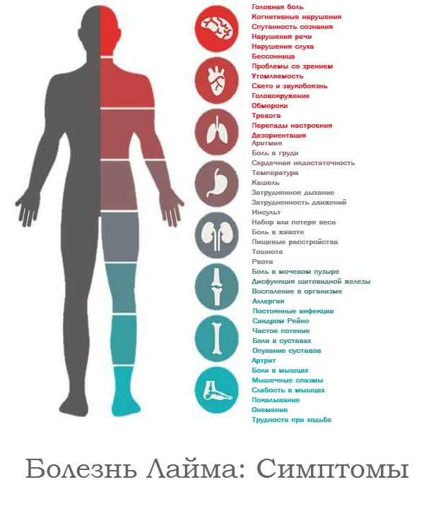 Болезнь Лайма - симптомы