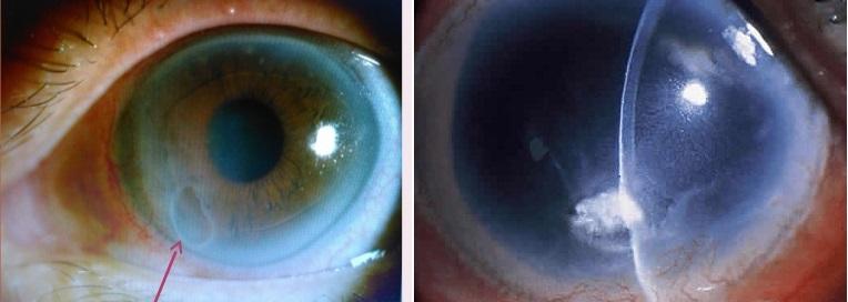 Буллезная кератопатия роговицы глаза
