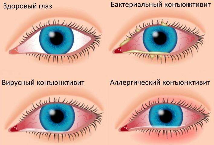 красные глаза лечение в домашних условиях