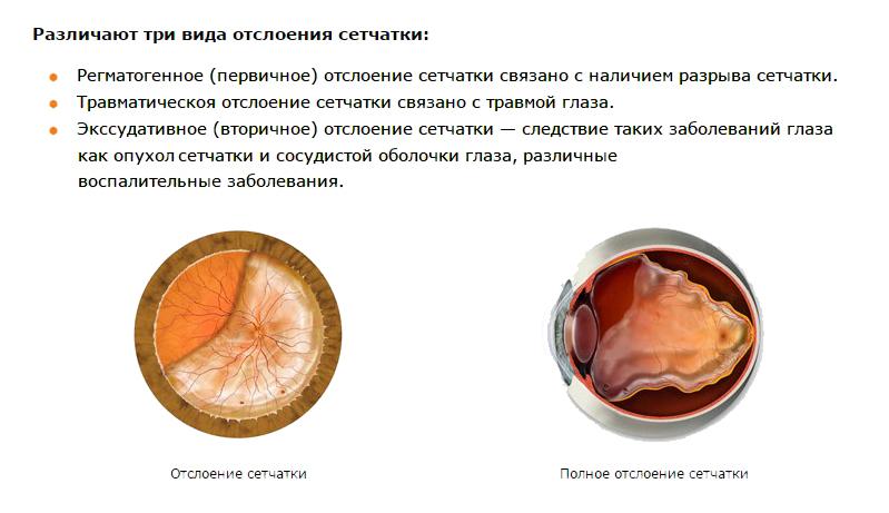 Виды отслоения сетчатки