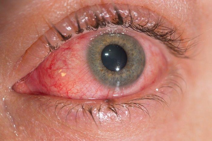 Вирусный конъюнктивит - лечение