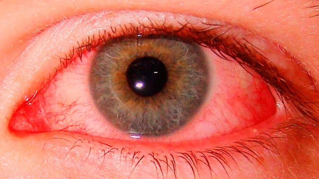 Воспаление глаза