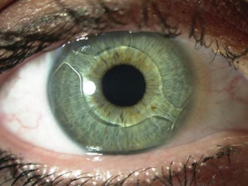 Глаз с искусственным хрусталиком