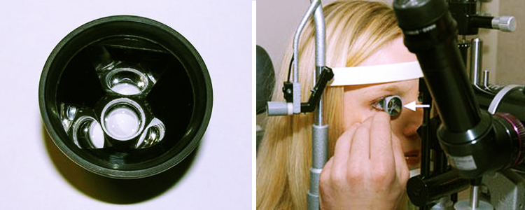 Гониоскопия глаза