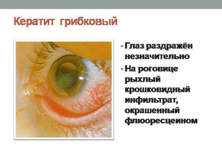 кератит глаза симптомы и лечение у детей