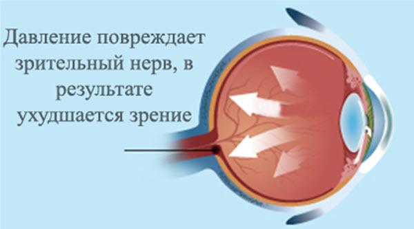 Давление повреждает зрительный нерв, в результате ухудшается зрение
