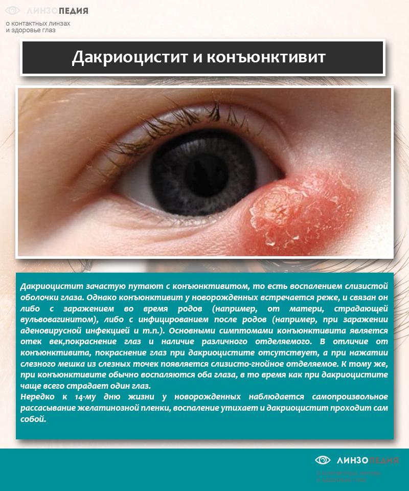 Дакриоцистит и конъюнктивит