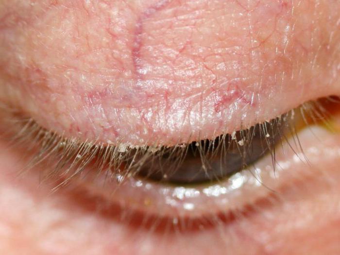 Глазные капли при демодекозе век