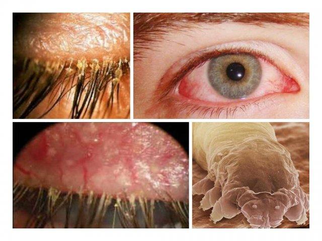 Демодекс глаз - лечение
