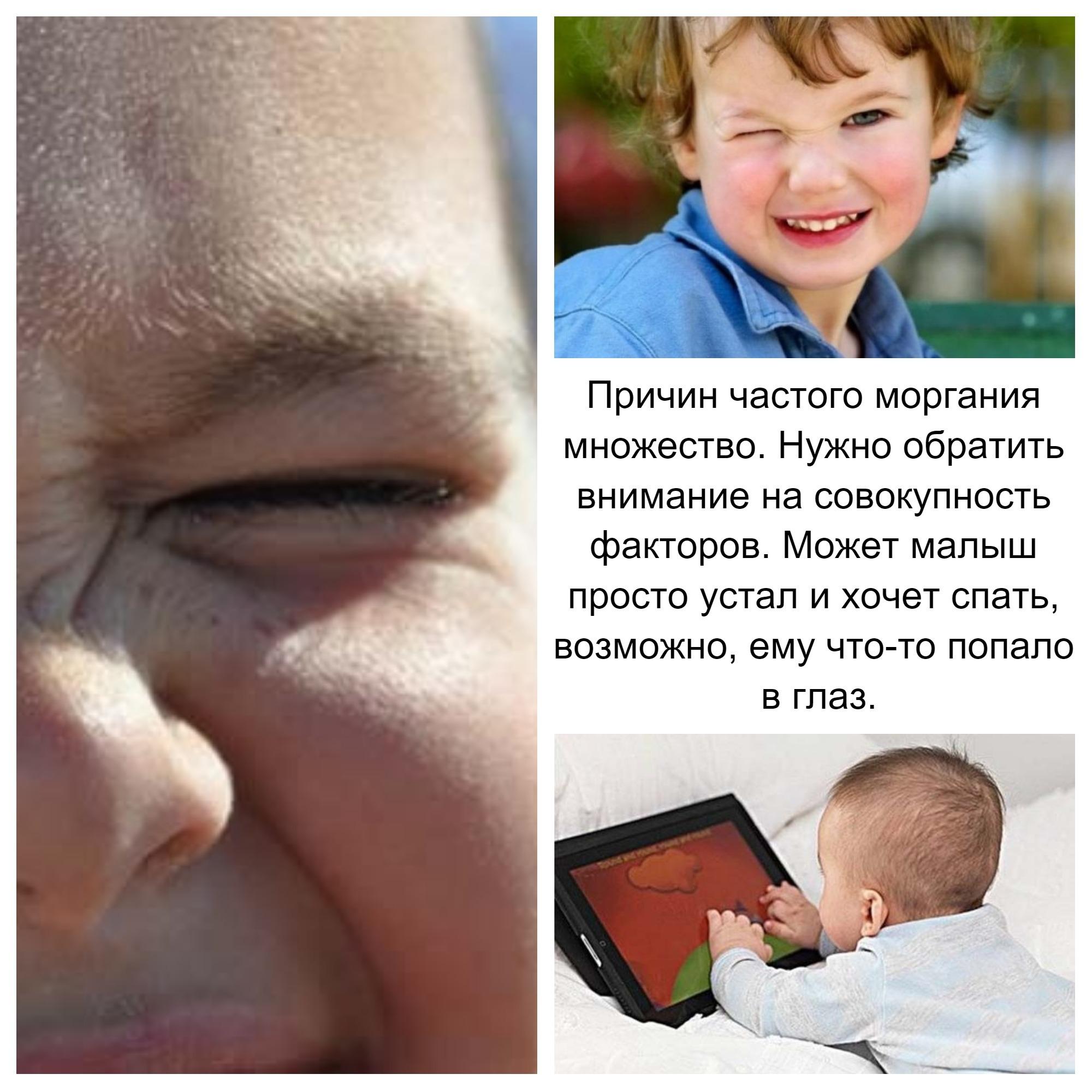 Если ребенок часто моргает причины могут быть самыми разными