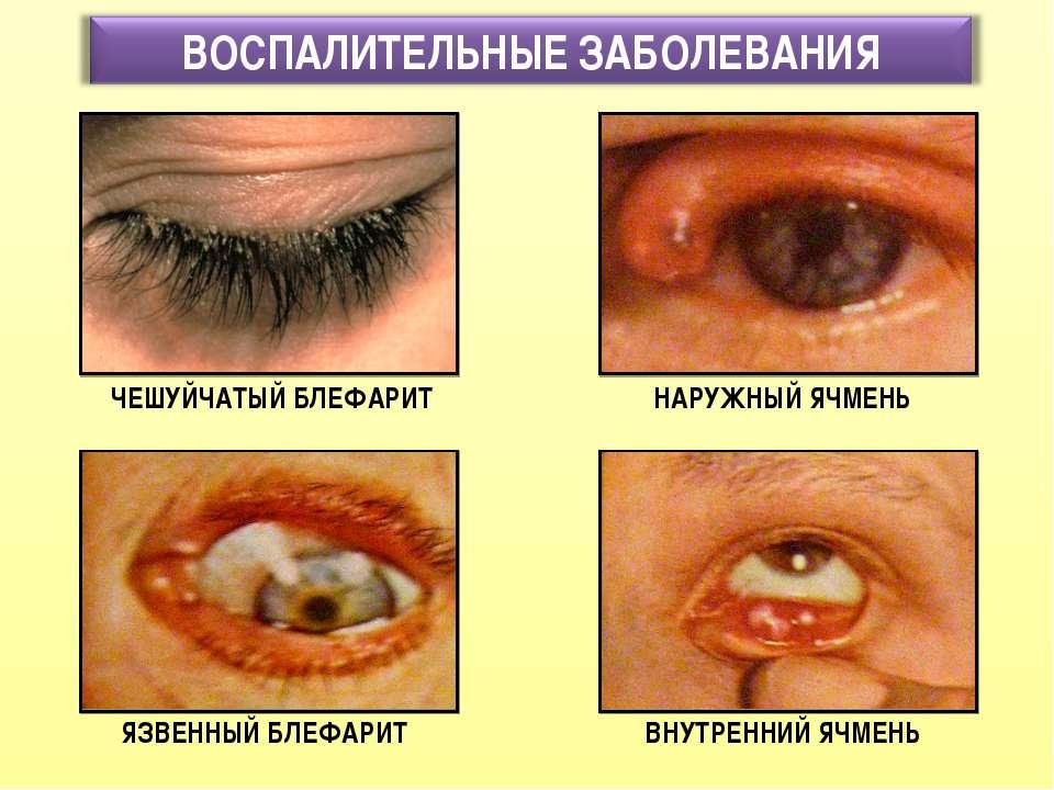 Заболевания глаз, вызывающие их покраснение