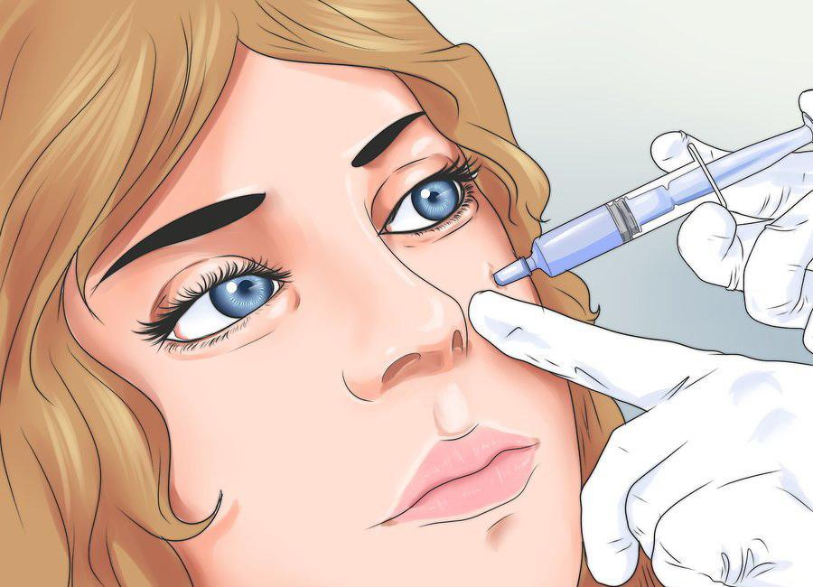 Инъекция гиалуронового наполнителя
