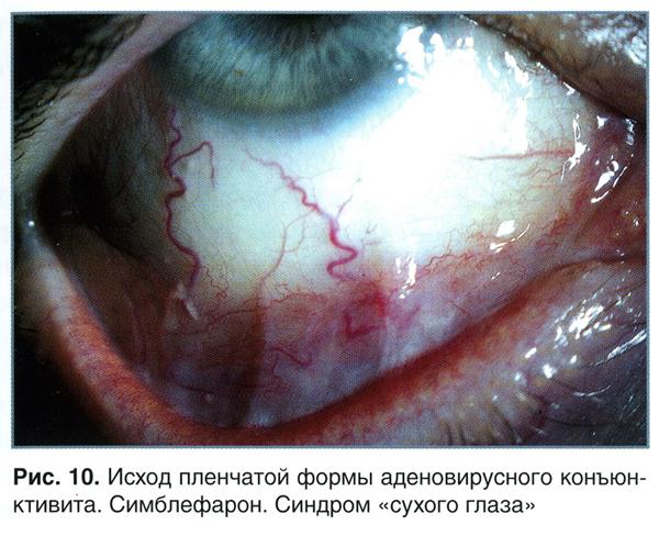 Исход пленчатой формы аденовирусного конъюнктивита. Симблефарон