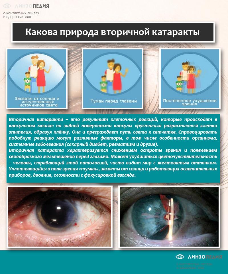 Какова природа вторичной катаракты