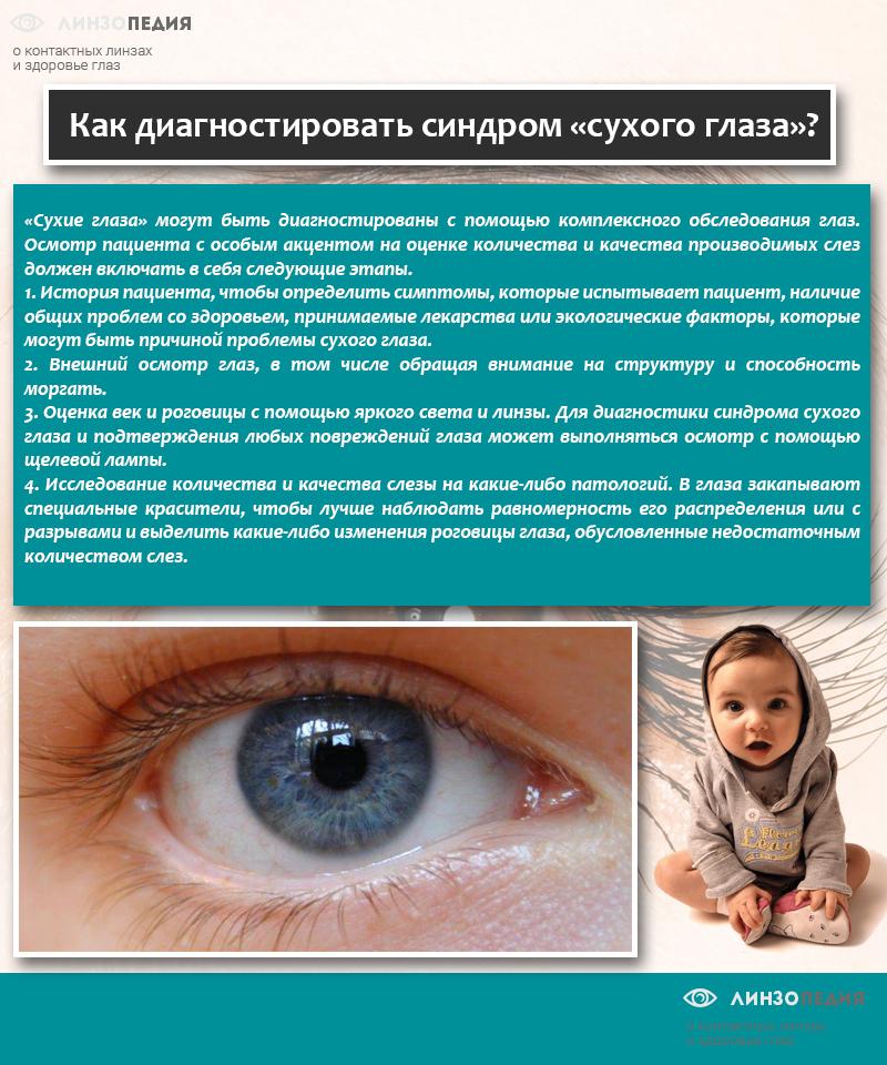 Как диагностировать синдром «сухого глаза»