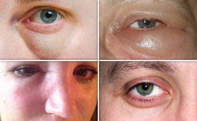 Как снять отек с глаз