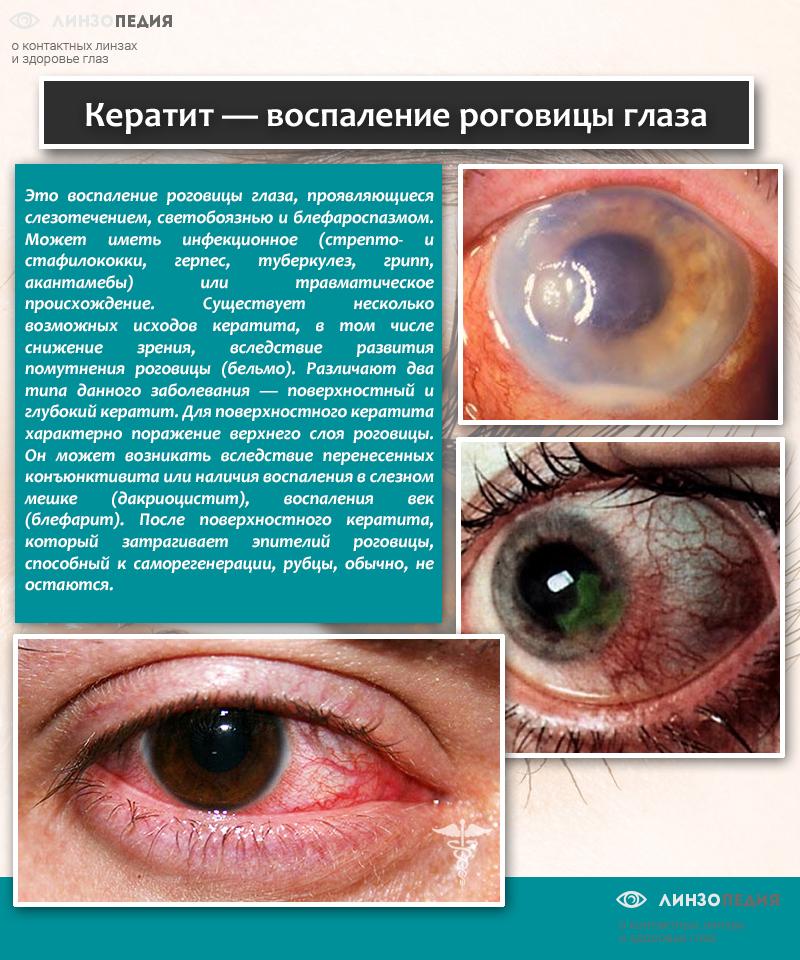 Кератит - воспаление роговицы глаза