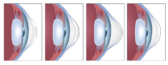 Кератоконус глаз - стадии заболевания
