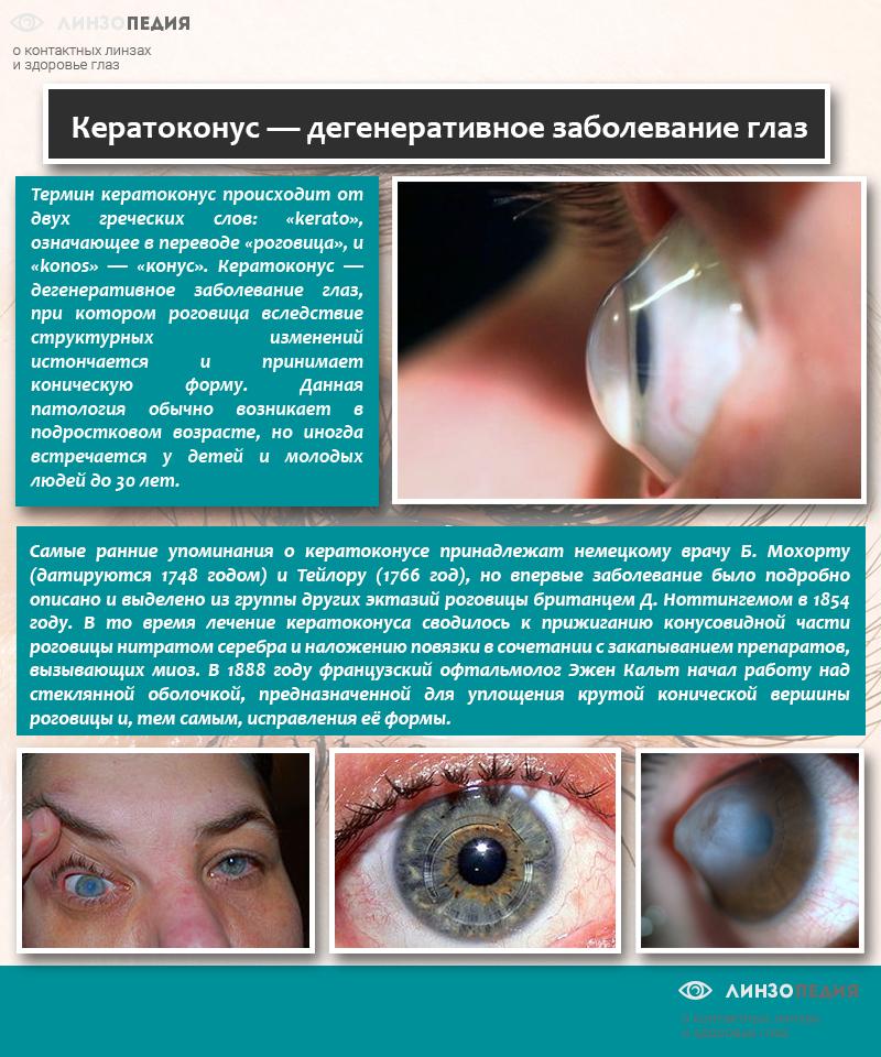 Кератоконус — дегенеративное заболевание глаз