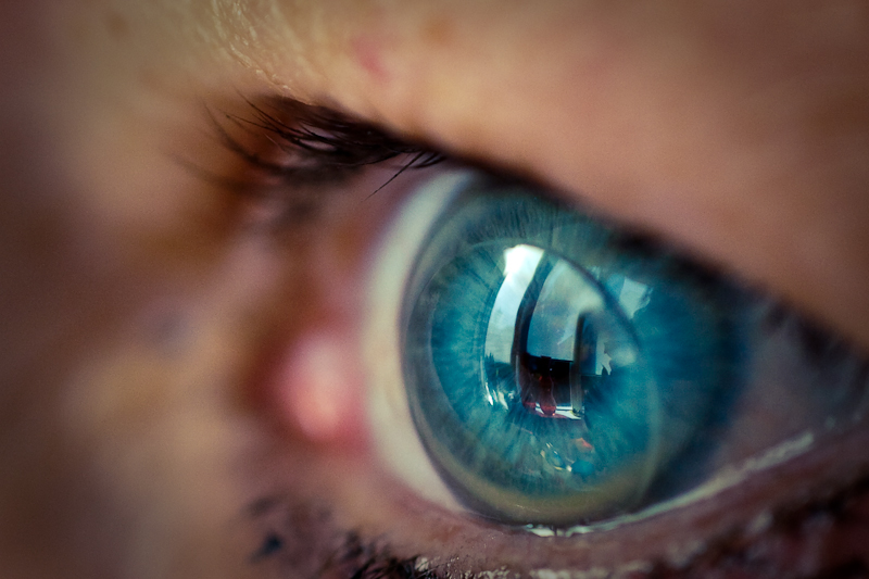 Контактная линза на глазу