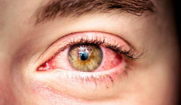 Контактные линзы на ночь для улучшения зрения