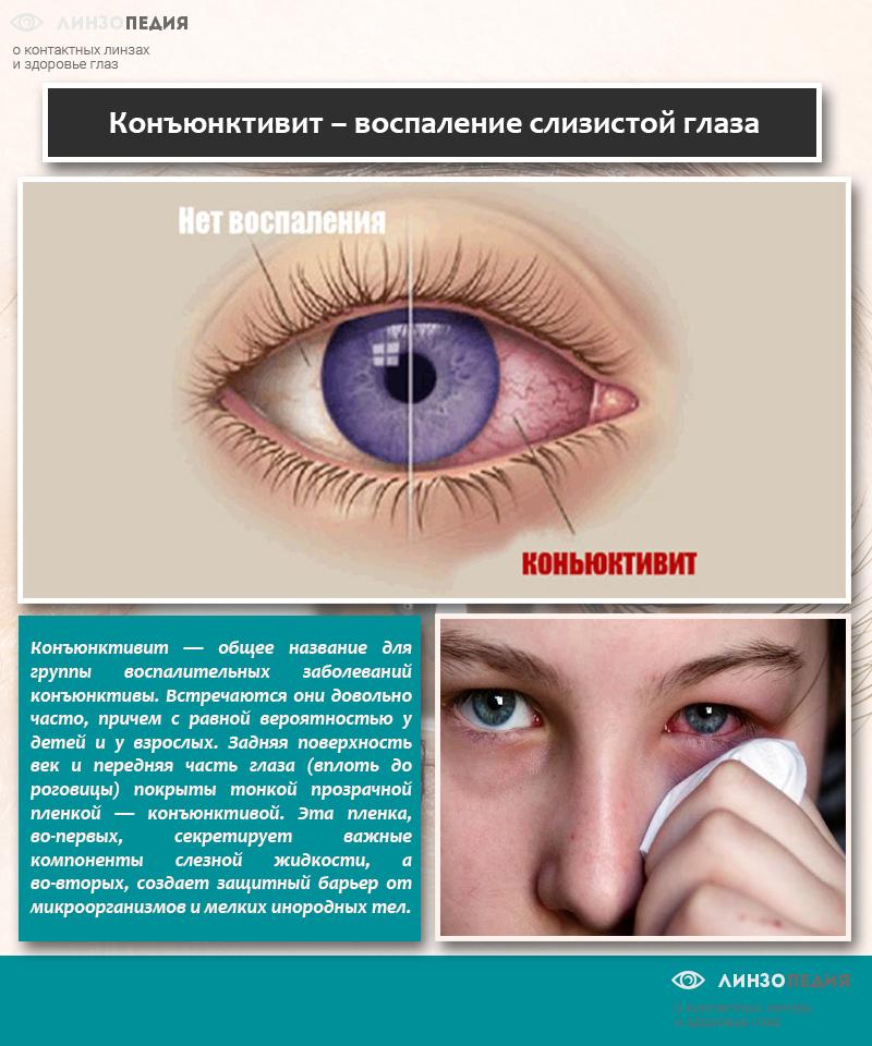Конъюнктивит – воспаление слизистой глаза