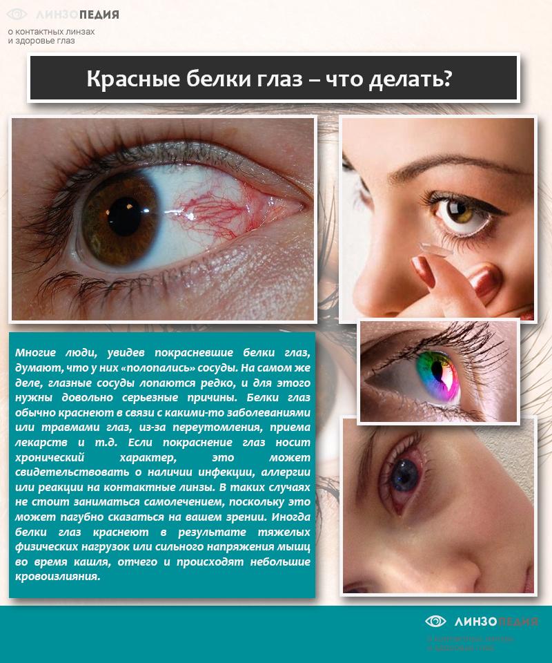 Красные белки глаз – что делать