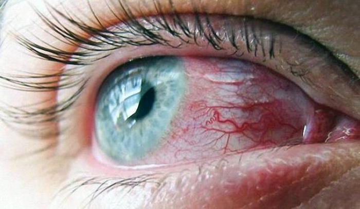 Красные сосуды на белках глаз