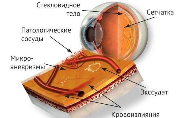 Кровоизлияние при ретинопатии