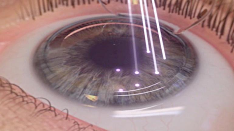 Лазерная коррекция возрастной дальнозоркости