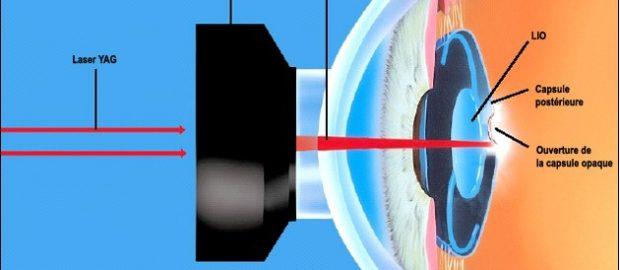 Лазер эффективно удаляет участки капсулы, отмеченные повышенным разрастанием клеток