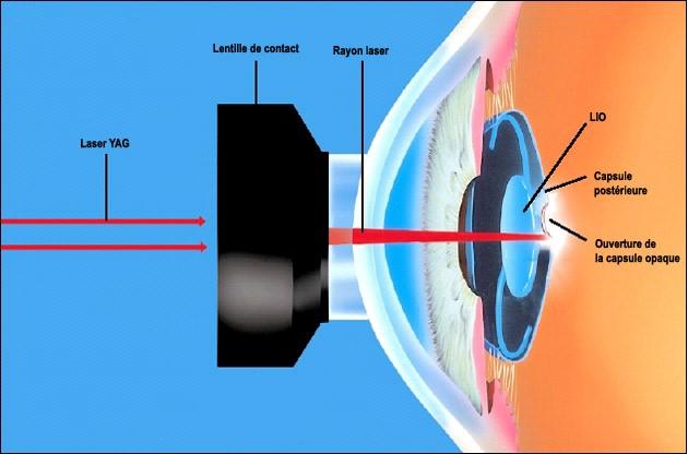 МКБ-10. H26.4 Вторичная катаракта