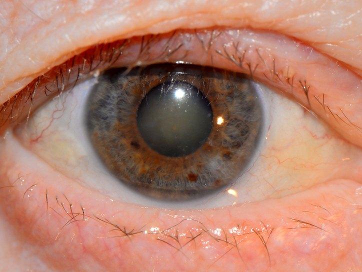 катаракта глаза симптомы