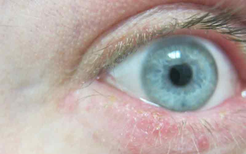 Глазной клещ демодекс симптомы лечение профилактика