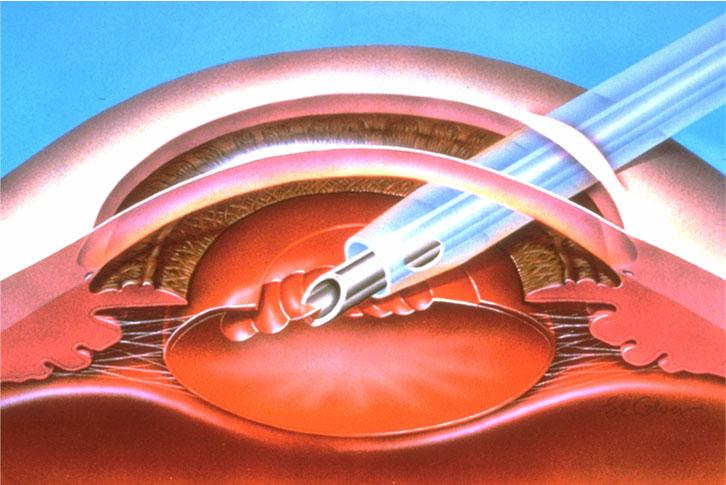 Лечение катаракты - факоэмульсификация