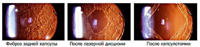 Лечение фиброза задней капсулы хрусталика